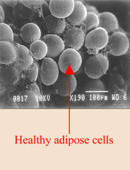 healthy adipose cells