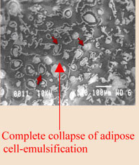 complete collapse of adipose cell-emulsification