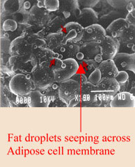 fat droplets seeping across adipose cell membrane